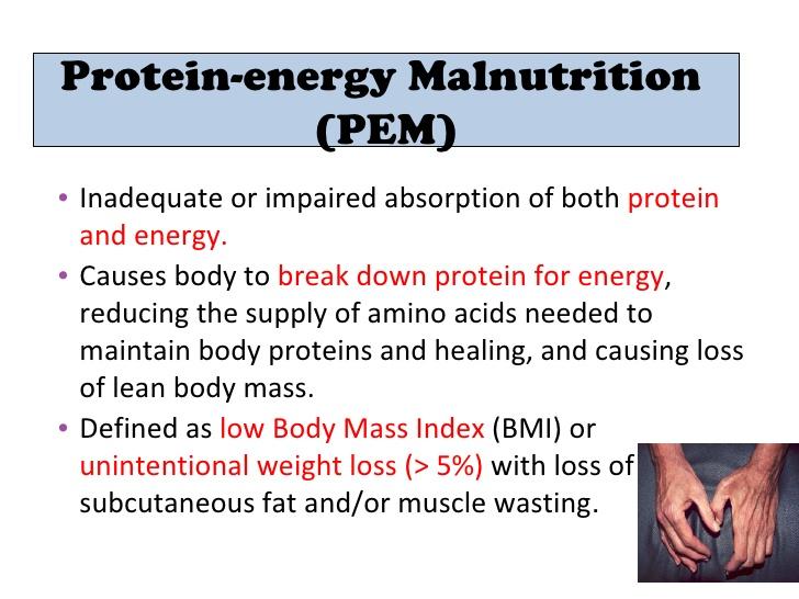 diet plan protein energy malnutrition diet plan